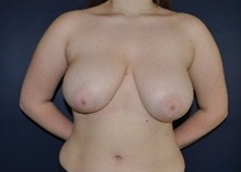 Breast Reduction Before Photo by Jerry Weiger Chang, MD; Flushing, NY - Case 36696