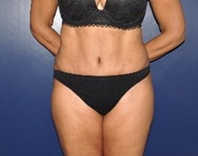 Tummy Tuck After Photo by Jerry Weiger Chang, MD; Flushing, NY - Case 36698
