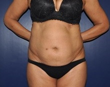 Tummy Tuck Before Photo by Jerry Weiger Chang, MD; Flushing, NY - Case 36698