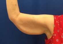 Arm Lift Before Photo by Jerry Weiger Chang, MD; Flushing, NY - Case 36699