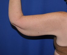 Arm Lift After Photo by Jerry Weiger Chang, MD; Flushing, NY - Case 36699