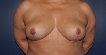 Breast Reduction After Photo by Jerry Weiger Chang, MD; Flushing, NY - Case 36701