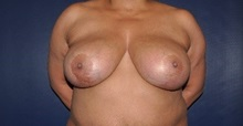 Breast Reduction Before Photo by Jerry Weiger Chang, MD; Flushing, NY - Case 36701