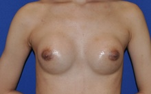 Breast Augmentation After Photo by Jerry Weiger Chang, MD; Flushing, NY - Case 41834