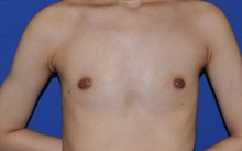 Breast Augmentation Before Photo by Jerry Weiger Chang, MD; Flushing, NY - Case 41834