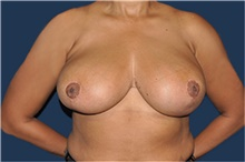 Breast Reduction After Photo by Jerry Weiger Chang, MD; Flushing, NY - Case 41849