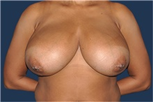 Breast Reduction Before Photo by Jerry Weiger Chang, MD; Flushing, NY - Case 41849