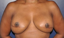 Breast Reconstruction After Photo by Jerry Weiger Chang, MD; Flushing, NY - Case 41850