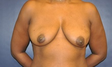 Breast Reconstruction Before Photo by Jerry Weiger Chang, MD; Flushing, NY - Case 41850