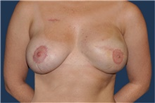 Breast Reconstruction After Photo by Jerry Weiger Chang, MD; Flushing, NY - Case 41852