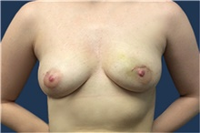 Breast Reconstruction Before Photo by Jerry Weiger Chang, MD; Flushing, NY - Case 41852