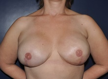 Breast Reconstruction After Photo by Jerry Weiger Chang, MD; Flushing, NY - Case 41854