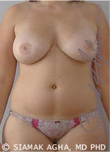 Breast Augmentation After Photo by Siamak Agha, MD; Newport Beach, CA - Case 43859