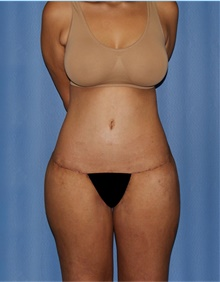Body Lift After Photo by Siamak Agha, MD; Newport Beach, CA - Case 43877