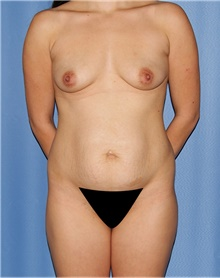 Mommy Makeover Before Photo by Siamak Agha, MD; Newport Beach, CA - Case 43894