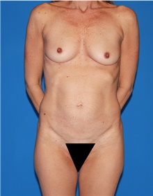 Mommy Makeover Before Photo by Siamak Agha, MD; Newport Beach, CA - Case 43899
