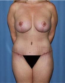 Mommy Makeover After Photo by Siamak Agha, MD; Newport Beach, CA - Case 43905