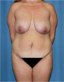 Mommy Makeover Before Photo by Siamak Agha, MD; Newport Beach, CA - Case 43905