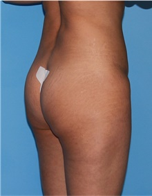 Buttock Lift with Augmentation Before Photo by Siamak Agha, MD; Newport Beach, CA - Case 43918