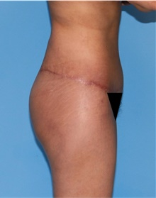 Buttock Lift with Augmentation After Photo by Siamak Agha, MD; Newport Beach, CA - Case 43918