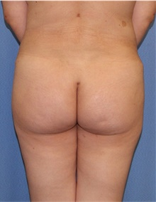Buttock Lift with Augmentation After Photo by Siamak Agha, MD; Newport Beach, CA - Case 43920
