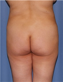 Buttock Lift with Augmentation Before Photo by Siamak Agha, MD; Newport Beach, CA - Case 43920