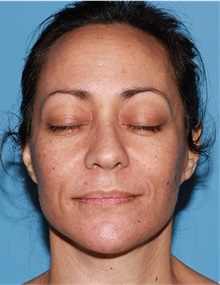 Facelift After Photo by Siamak Agha, MD; Newport Beach, CA - Case 43924