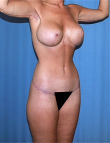 Body Lift After Photo by Siamak Agha, MD; Newport Beach, CA - Case 43935