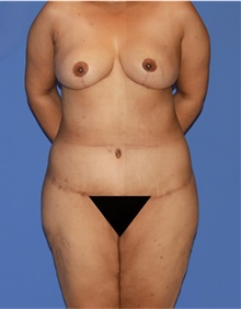 Body Lift After Photo by Siamak Agha, MD; Newport Beach, CA - Case 43938