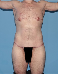 Body Lift After Photo by Siamak Agha, MD; Newport Beach, CA - Case 43940