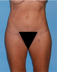 Body Lift After Photo by Siamak Agha, MD; Newport Beach, CA - Case 43949
