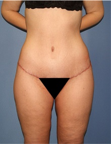 Body Lift After Photo by Siamak Agha, MD; Newport Beach, CA - Case 43977