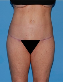 Body Lift After Photo by Siamak Agha, MD; Newport Beach, CA - Case 43978