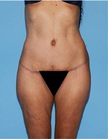 Body Lift After Photo by Siamak Agha, MD; Newport Beach, CA - Case 43979