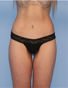 Body Lift After Photo by Siamak Agha, MD; Newport Beach, CA - Case 43986