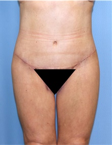 Body Lift After Photo by Siamak Agha, MD; Newport Beach, CA - Case 43987