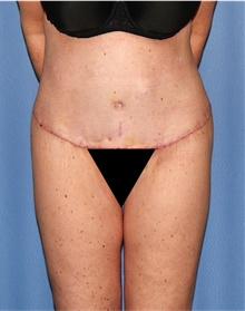 Body Lift After Photo by Siamak Agha, MD; Newport Beach, CA - Case 43988