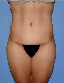 Body Lift After Photo by Siamak Agha, MD; Newport Beach, CA - Case 43990