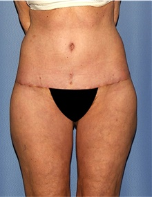 Body Lift After Photo by Siamak Agha, MD; Newport Beach, CA - Case 43991