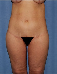Body Lift After Photo by Siamak Agha, MD; Newport Beach, CA - Case 43992