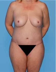 Body Contouring After Photo by Siamak Agha, MD; Newport Beach, CA - Case 44005