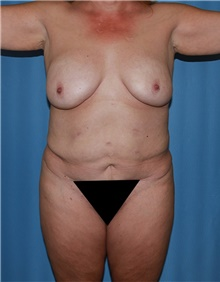 Body Contouring Before Photo by Siamak Agha, MD; Newport Beach, CA - Case 44005