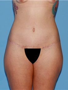 Body Contouring After Photo by Siamak Agha, MD; Newport Beach, CA - Case 44047