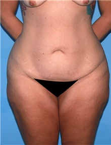Body Contouring Before Photo by Siamak Agha, MD; Newport Beach, CA - Case 44047