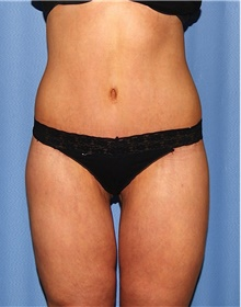 Body Contouring After Photo by Siamak Agha, MD; Newport Beach, CA - Case 44075