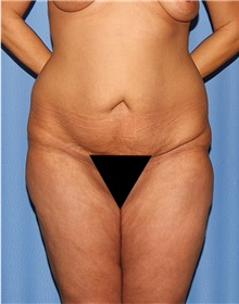 Body Contouring Before Photo by Siamak Agha, MD; Newport Beach, CA - Case 44075