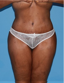 Body Contouring After Photo by Siamak Agha, MD; Newport Beach, CA - Case 44086