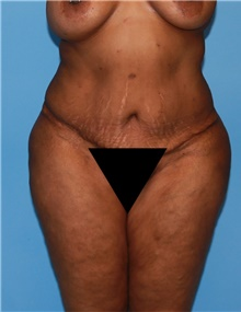 Body Contouring Before Photo by Siamak Agha, MD; Newport Beach, CA - Case 44086