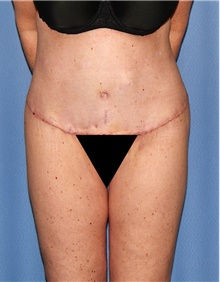 Body Contouring After Photo by Siamak Agha, MD; Newport Beach, CA - Case 44108