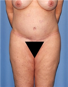 Body Contouring Before Photo by Siamak Agha, MD; Newport Beach, CA - Case 44108